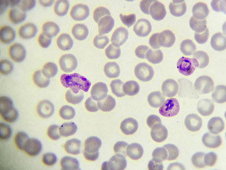 blood smear: Malaria parasite in blood smear, Plasmodium vivax