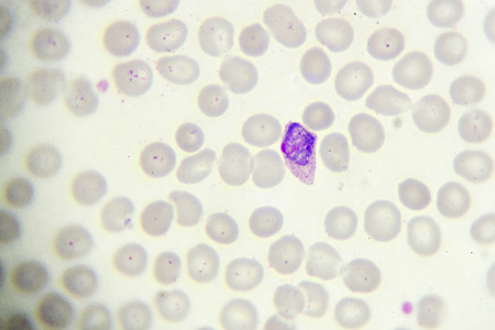 malaria: Malaria parasite in blood smear, gemetocyte stage