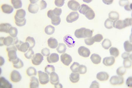 malaria: Malaria parasite in blood smear, growing trophozoite