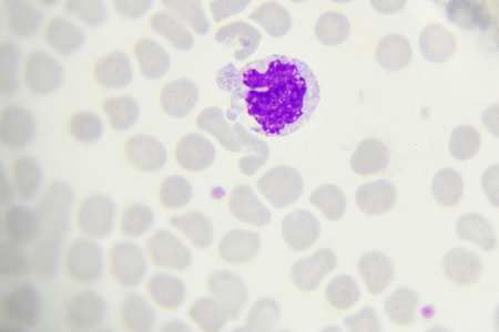 monocyte: Monocyte cell in blood smear