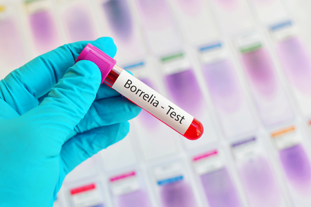 lyme: Blood sample for Borrelia test, Lyme disease diagnosis