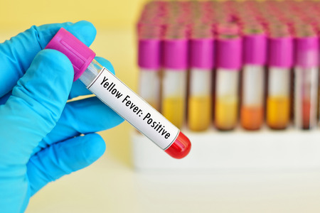 immunology: Blood sample positive with yellow fever test