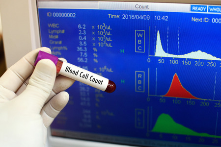 thalassemia: Blood cell count