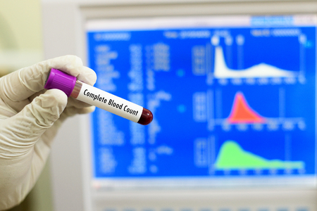 thrombocytopenia: Complete blood count Stock Photo