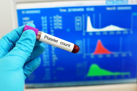 thrombocytopenia: Platelet count Stock Photo