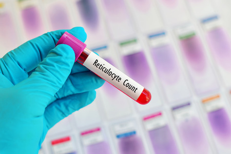 thalassemia: Blood sample for reticulocyte count, immature red blood cell analysis Stock Photo