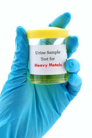 pb: Urine sample for heavy metals test Stock Photo