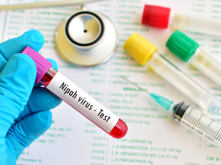 technologist: Blood sample for Nipah virus test Stock Photo