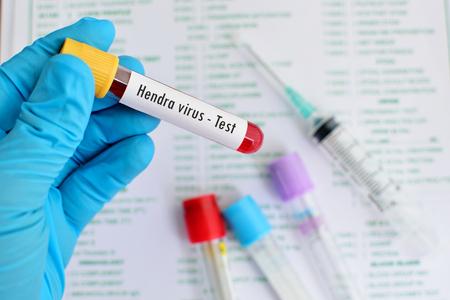 probeta: Tubo de ensayo con la muestra de sangre para la prueba de virus Hendra