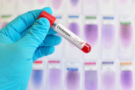 varicela: La varicela positivo