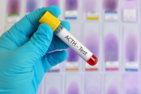 muestra de sangre para la prueba de la hormona adrenocorticotrópica (ACTH)