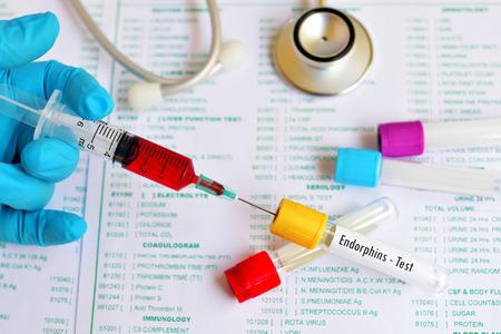 hipofisis: Tubo de ensayo con la muestra de sangre para la prueba de endorfinas