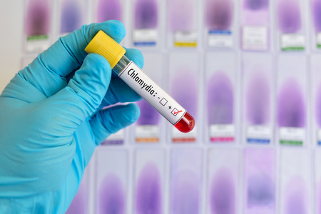 Blood sample positive with Chlamydia trachomatis Stock fotó