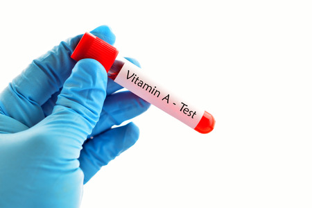 riboflavin: Test tube with blood sample for vitamin A test