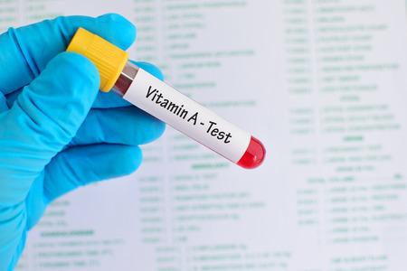 Vitamin A test