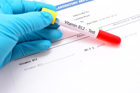 thiamine: Vitamine B12 testing result Stock Photo