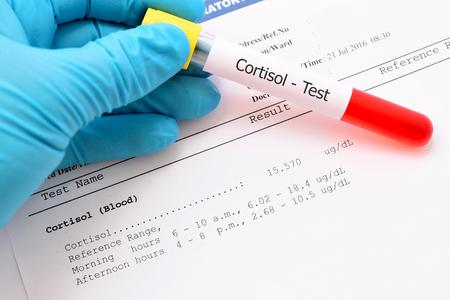 コルチゾール ホルモン検査結果