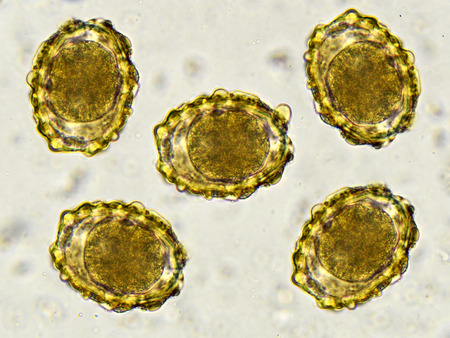 protozoa: Eggs of Ascaris lumbricoides in stool Stock Photo