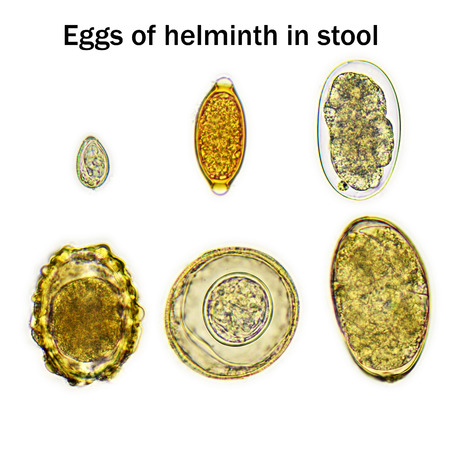 Eggs of helminth in stool
