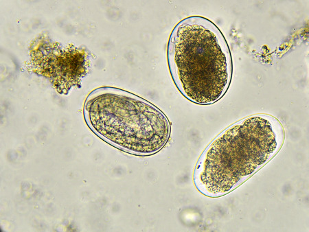protozoa: Eggs of Hookworm in stool