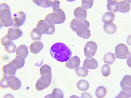 smear: White blood cell in blood smear