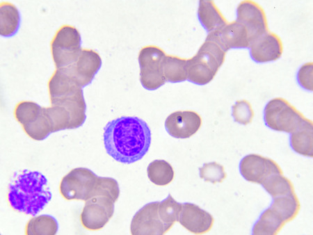 monocyte: White blood cell in blood smear
