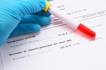 Thyroglobulin antibody and microsomal antibody result Stock Photo