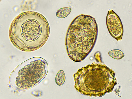 fecal: Eggs of helminth in stool