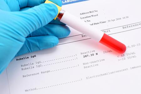 rubella: Rubella antibody testing result