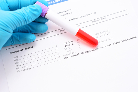 osmotic: Hemoglobin typing result
