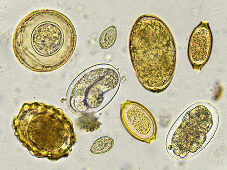protozoa: Eggs of helminth in stool