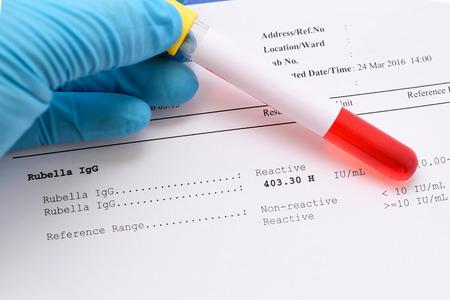 rubella: Rubella virus testing result