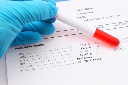 osmotic: Abnormal hemoglobin typing result