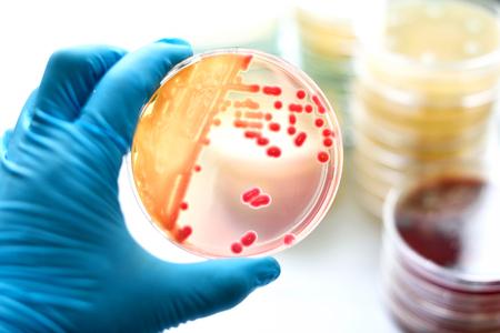 agar: Colonies of bacteria in MacConkey agar