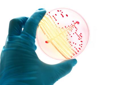 colonies: Colonies of bacteria in MacConkey agar