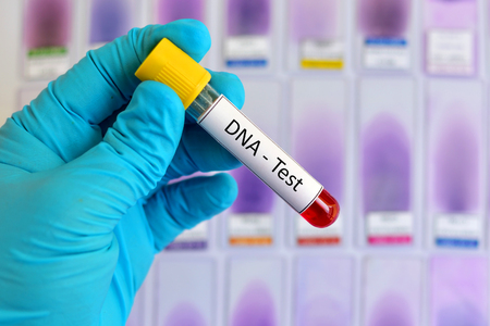 Blood sample for DNA testing Stock Photo