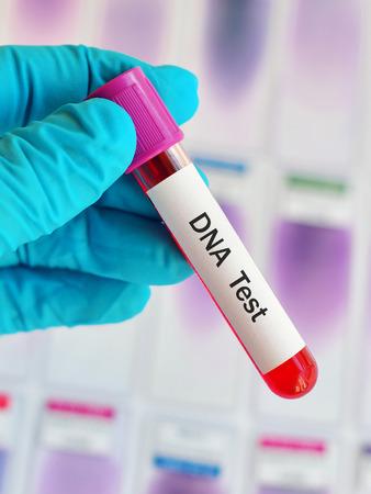 nucleotide: Blood sample for DNA testing Stock Photo