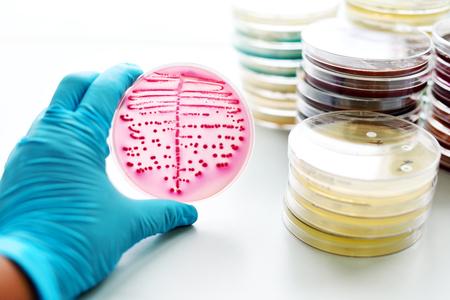 petri dish: Bacteria culture in petri dish