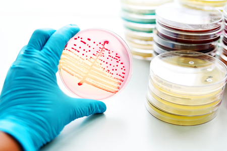 Bacteria culture in petri dish