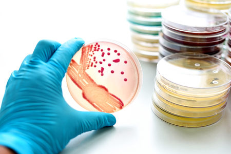 microbial: Colonies of bacteria in culture medium plate