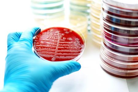 agar: Colonies of bacteria in blood agar Stock Photo