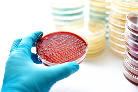 Colonies of bacteria in blood agar Reklamní fotografie