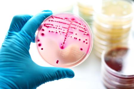 Bacteriekolonies in MacConkey agar Stockfoto