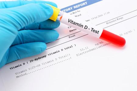 Vitamin D testing result with blood sample Banco de Imagens - 65398536
