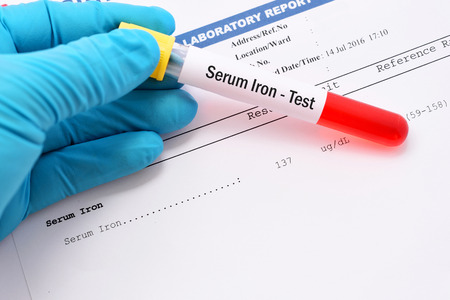 Serum iron testing result with blood sample
