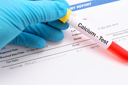 calcium: Blood sample for calcium test with result Stock Photo