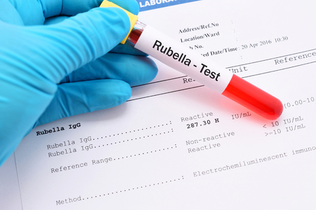 rubella: Blood sample for rubella virus test with result