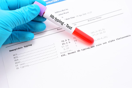heredity: Blood sample for Hb typing test with normal result Stock Photo