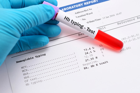 osmotic: Blood sample with abnormal Hb typing result