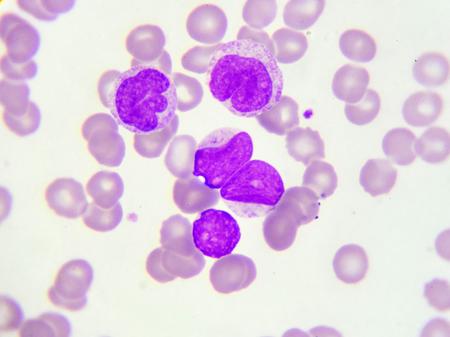 aml: Leukemia cells in peripheral blood smear